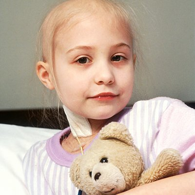 Pediatric Cancer. A young girl with acute lymphocytic leukemia (ALL) receiving chemotherapy. Pediatric, childhood, AYA.
